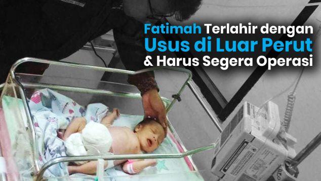 Bantu Fathimah, Bayi Penderita Omphalocele Sembuh