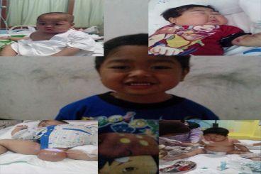 Anak Idap Sindrom Nefrotik Relaps Sering