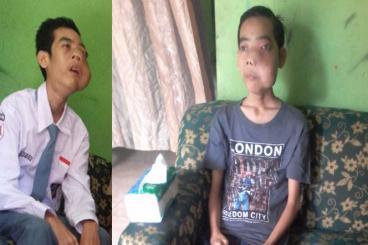 Bantu Ranggo Melawan Angiofibroma (Tumor Hidung)
