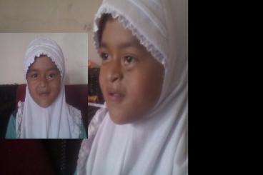 anak shalehah perlu perbaikan cacat wajah bawaan