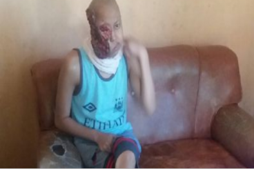 Nurhadi, Sang pemuda yang melawan Tumor Ganas