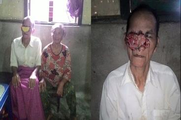 Bantu Bpk. Tohir untuk Pengobatan Kanker di Wajah