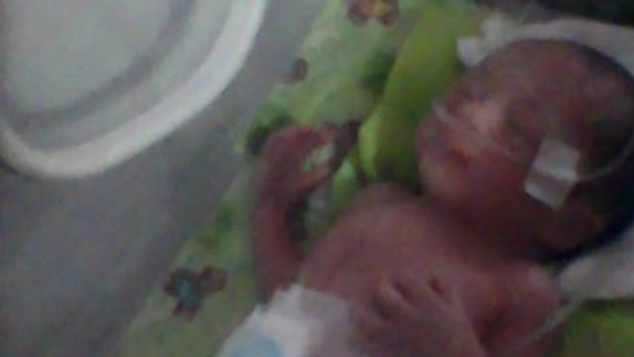 Bayi Cantik Syaqilla Prematur Butuh Bantuan