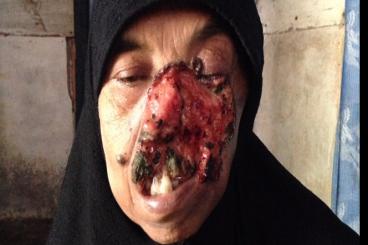 Peduli Ibu Ratma ( kanker kulit 16 tahun )