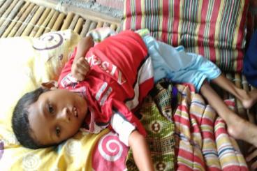 Dukung Indrawan Sembuh dari Polio dan Gizi Buruk