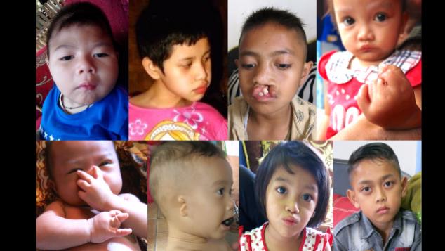 Bantuan medis untuk anak-anak korban merkuri