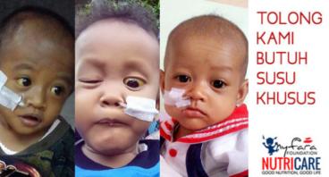 Nutrisi Anak Penderita Atresia Bilier