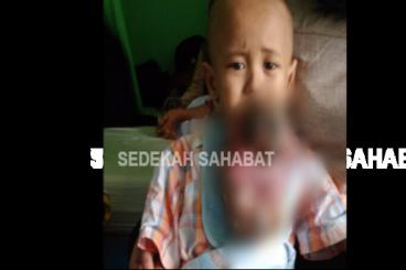 Bantu Saiful Sembuh dari Kanker Ganas