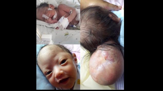 Baby Sophia, Meningoencephalocele Fighter