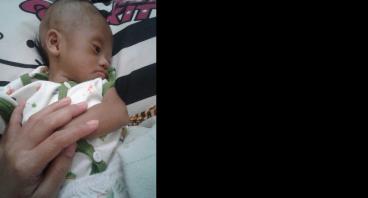 Operasi Jantung Bayi Alvin