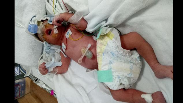 Bantu Baby Jehan yang sedang dalam perawatan NICU