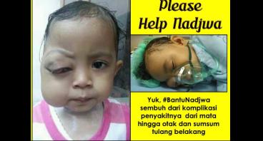 #BantuNadjwa Melawan Tumor Mata