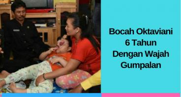 Bocah Oktaviani, 6 Tahun Dengan Gumpalan di Wajah