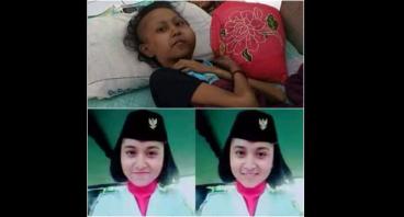 Bantu Cucu Melawan Tumor Ginggiva