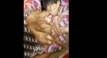 Bantu Yusuf Sembuh dari Penyakit Meningitis