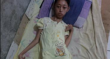 Derita Gadis Cilik Yang Malang Alami Kelumpuhan