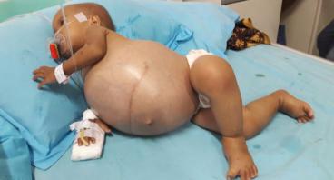 Bantu Bayi Sheyla Sembuh dari Tumor Ginjal