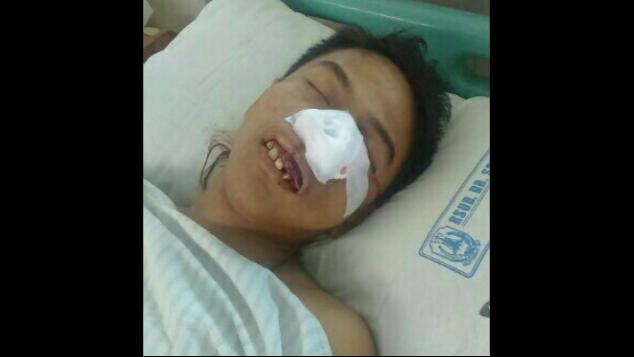 """Operasi Tumor Kawan Kami """"Muhammad Yasin"""""""