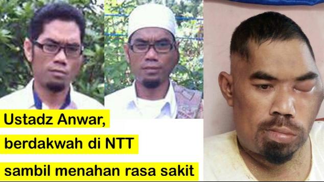 Ustadz Anwar berdakwah di NTT sambil menahan sakit