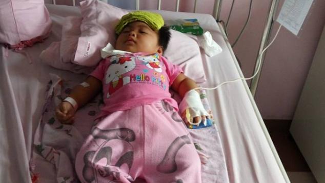 Bantu Bayi Stasya Melawan Saraf Otak