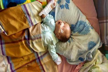 Bayi Tristan, umur 1 bulan Jantung Bocor .