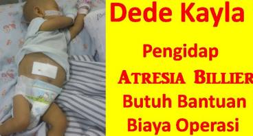 Bantu Pejuang Atresia Bilier Kayla