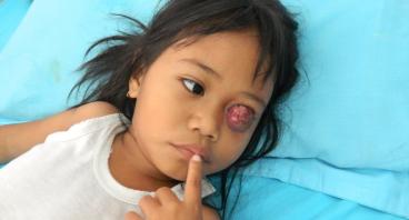 Kanker pada matanya, adik Elis ingin sembuh