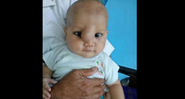 Operasi Tumor Untuk Alfian Rahmat (3,5 bulan)