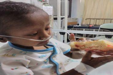 Operasi Cangkok Hati untuk Ananda Khalid (5thn)