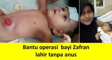Bantu operasi bayi Zafran, lahir tanpa anus