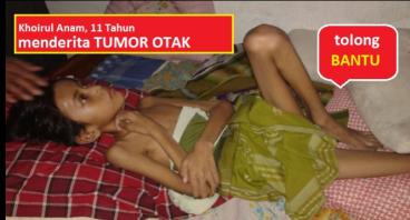 Bantu dik Khoirul yang menderita tumor otak 5 cm