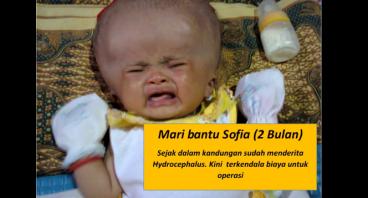 Bantu Sofia Sembuh dari Hydrocephalus