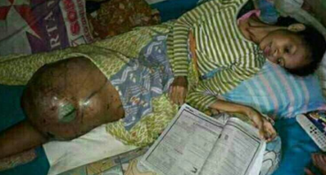 Nahla Namma, Kehilangan kaki kiri karena tumor