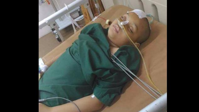 Bantu Badila, Operasi Pembuluh Darah Pecah di Otak