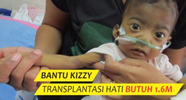 Bantu Kizzy, Transplantasi Hati Butuh 1,6M