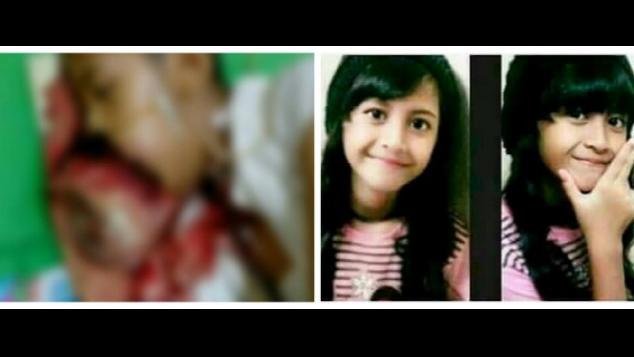 Peduli Tania | Kanker Mulut