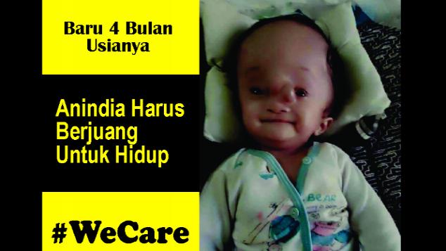 Bayi Baru 4 Bulan Harus Berjuang Untuk Hidup