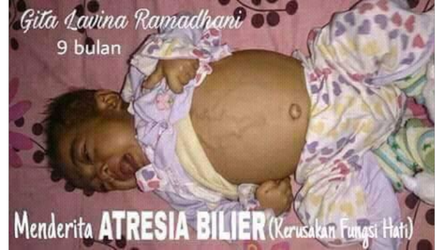 Gita Lavina Ramadhani operasi cangkok hati