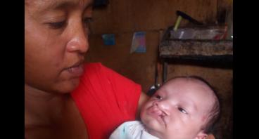 Bantu Ibu Diah Operasi Bibir Sumbing Anaknya