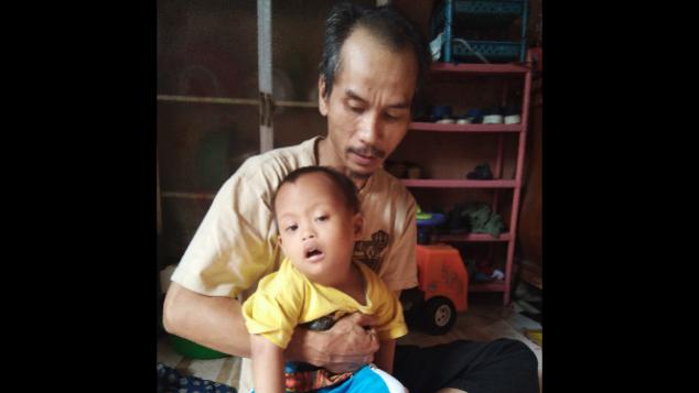 Bantu Balita Rizki Yang Mengalami Down Syndrome