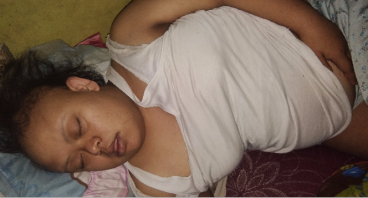 Bantu Uyun , Penderita Down Syndrome