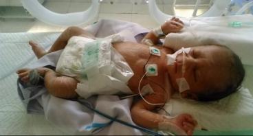 Bayi Tanpa Anus Ini Butuh Bantuan Untuk Operasi