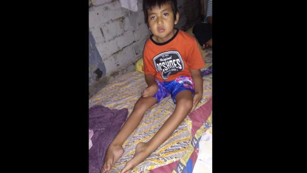 Bantu Rahmat, 9 Tahun Tidak Bisa Jalan