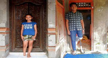 Bantu Komang & Devita Remaja Dengan Disabilitas