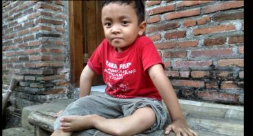 Bantu Adik Ghani Penderita Tulang Rapuh