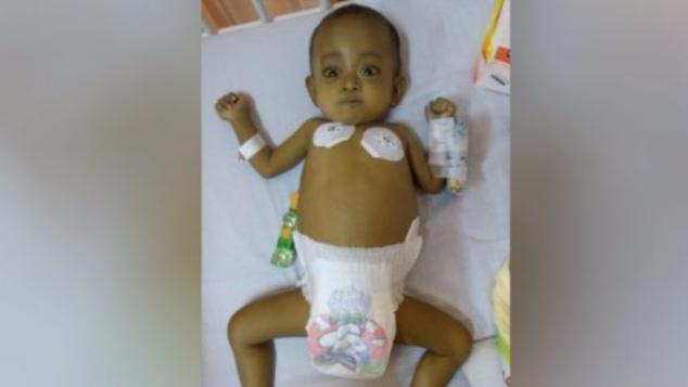 Cangkok Hati untuk Bayi Penderita Atresia Bilier