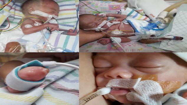 Yuk bantu biaya perawatan baby Clint (24weeker)