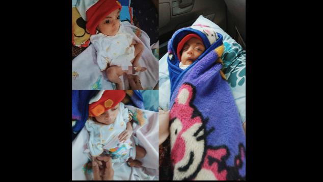 Bantu Bayi Cantik Fakhira Bebas Dari Atresia Ani