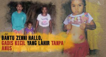 Bantu Zenni Hallo, agar tidak malu untuk sekolah