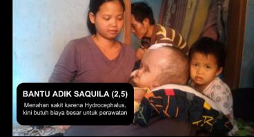 Hydrocephalus Adik Saquila